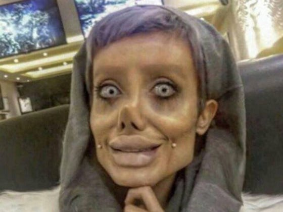 This Chick Had 50 Surgeries To Look Like Angelina Jolie... Sexy!